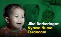 Keringatnya Bisa Merenggut Nyawa, Bantu Bayi Numa!