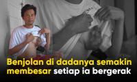 Benjolan Besar Di Dada Semakin Menyiksa Pak Uki..